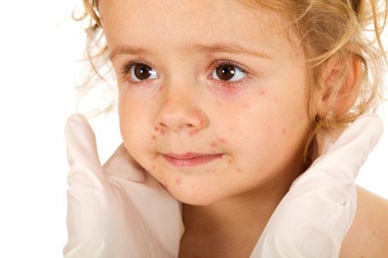 Маленькие детки, заболевшие ангиной