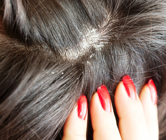 Как лечить волосы в домашних условиях от перхоти?