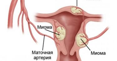 Что такое миома матки