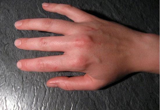Ревматизм рук: симптомы