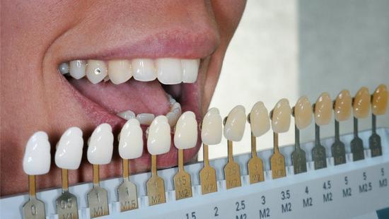 Стоматологические виниры: плюсы и минусы