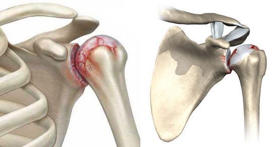Артроз плечевого сустава: симптомы