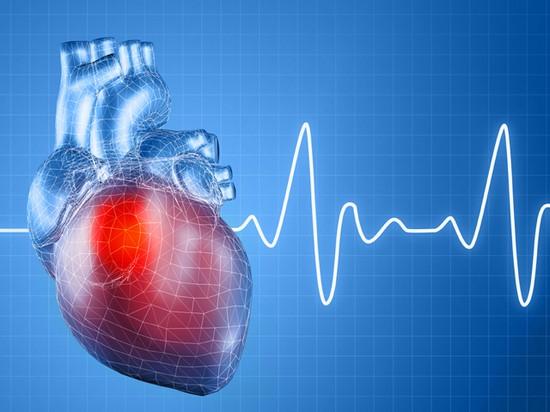 Аритмия сердца: симптомы, причины, диагностика, лечение