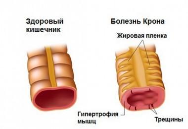 Болезнь Крона: симптомы и лечение, причины