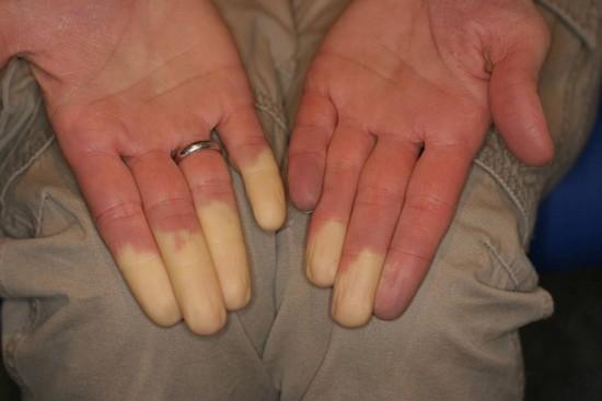 Важно отличать синдром и болезнь Рейно