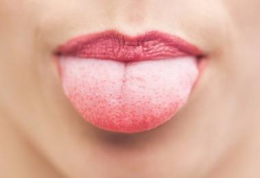 Прикусил язык: чем лечить, что делать, если появилась язвочка?
