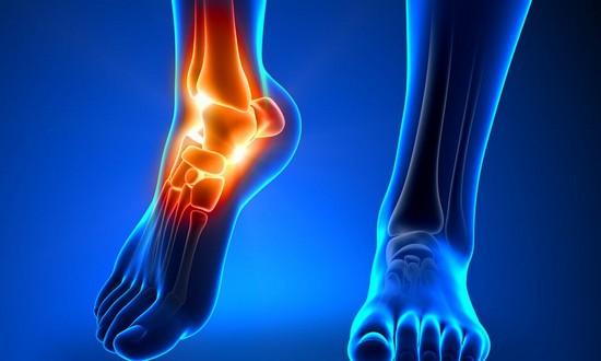 Почему повреждается голеностопный сустав