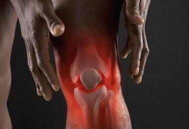 Реактивный артрит: симптомы и лечение, рекомендации