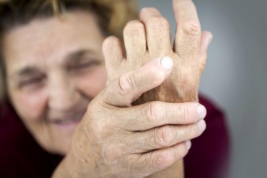 Симптоматика артрита реактивного типа