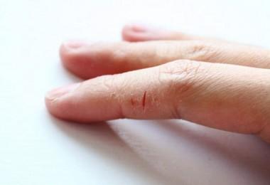 Эффективные способы лечения трещин на пальцах рук