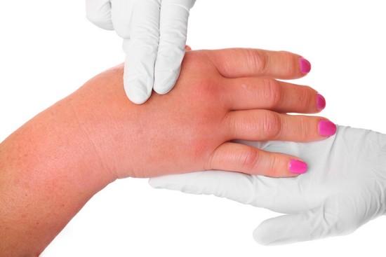 Почему болит запястье правой руки при беременности