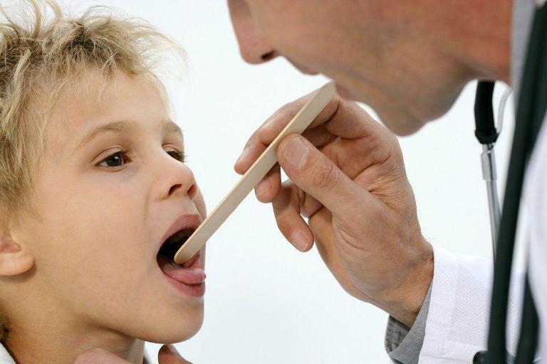 Заболевание имеет внезапное тяжелое начало. Ощущаются першение и боль в горле, особенно усиливающаяся во время глотания.