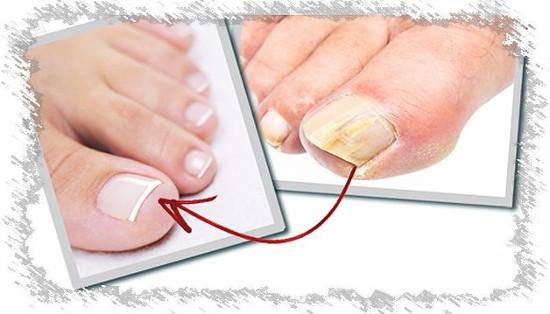 Можно ли лечить уксусом грибок ногтей?