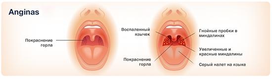 Грибковые ангины, их еще называют кандидозом (молочницей)