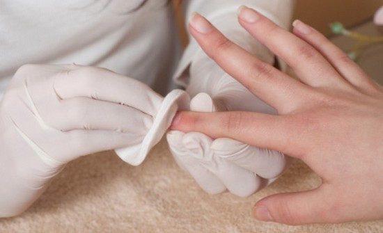 Лечить грибок ногтей перекисью водорода или нет