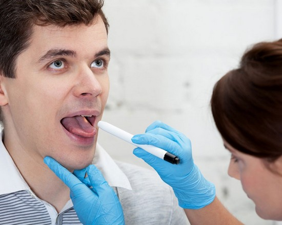 Тонзиллит - инфекционное заболевание