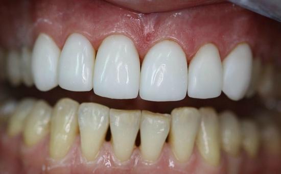 Отзывы о стоматологических винирах