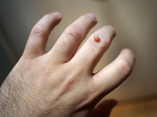 Бородавки на руках: причины появления, виды, лечение