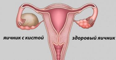 Как лечить кисту яичника, симптомы у женщин