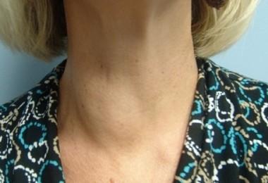Как навсегда вылечить кисту щитовидной железы?