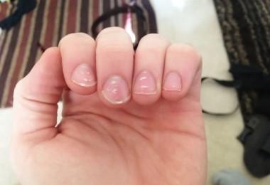 Эффективное лечение заболеваний ногтей на руках