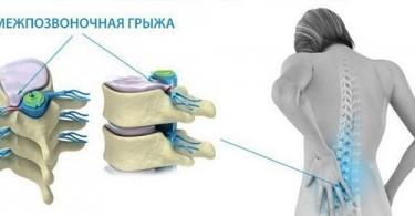 Результативное лечение грыжи пояснично-крестцового отдела позвоночника