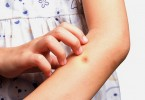 Помогают ли народные средства от укусов комаров?