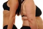 Экзогенно-конституциональное ожирение разной степени: способы лечения